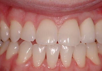 Single Missing Tooth (Implant)