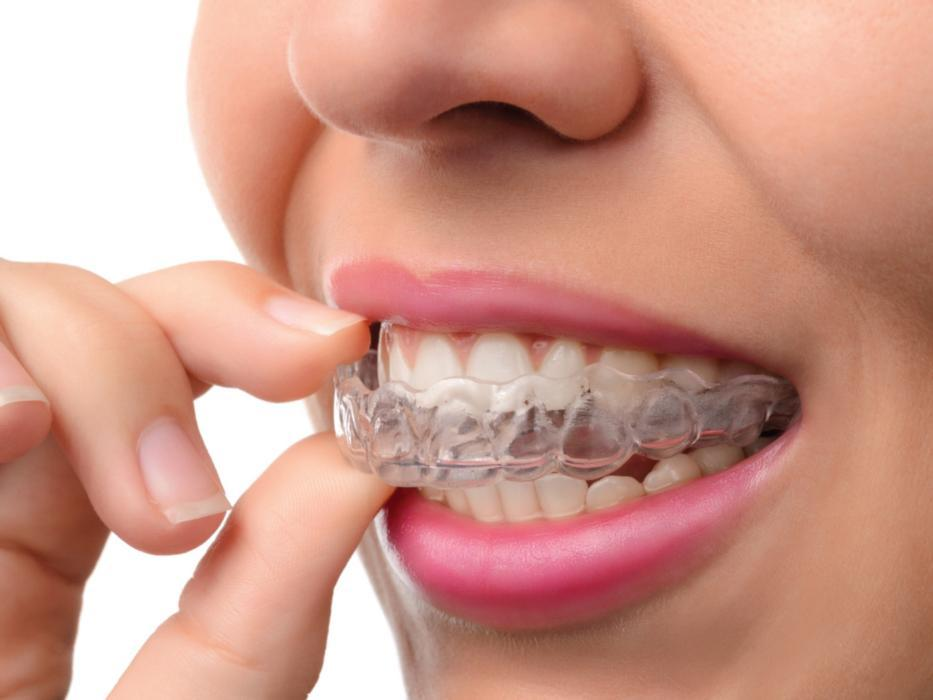 Woman putting Invisalign clear braces on top teeth | Invisalign Wausau WI