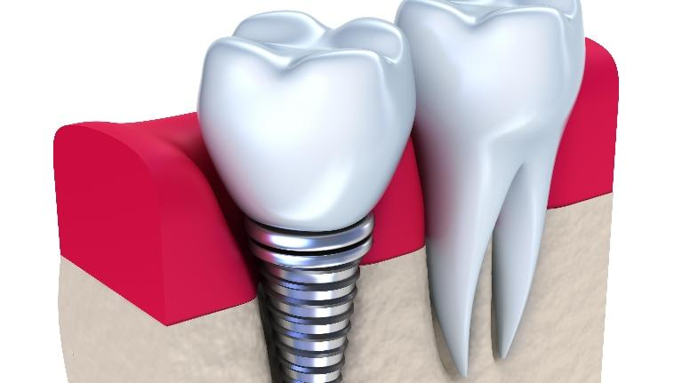 Image of dental implant and tooth | Dental Implants in Wausau WI