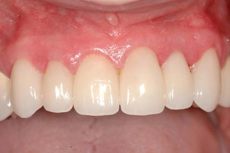 image of the same teeth after dental veneers | Wausau WI