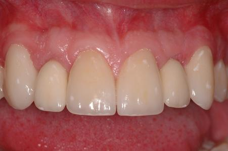 image of the same smile after porcelain veneers, implants, and crowns | Wausau WI