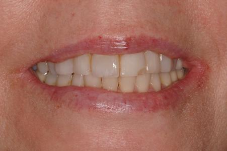 image of stained teeth | Wausau WI