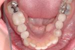 image of the same mouth after implants and crowns | Wausau WI