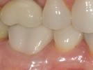 image of the same teeth after periodontal treatment | Wausau WI
