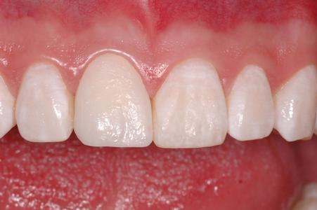 image of the same teeth after composite bonding | Wausau WI
