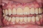 image of the same teeth after reconstruction and crowns | Wausau WI