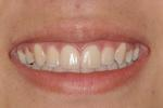 Orthodontics-Braces-Straight-Teeth-After-Image