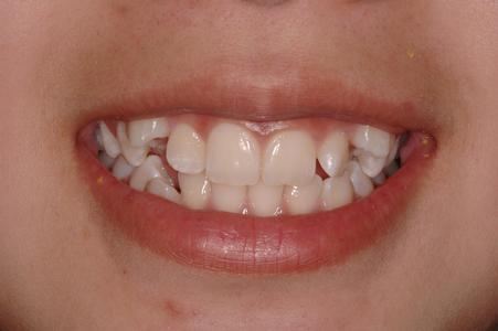 image of crooked teeth with gaps | Wausau WI