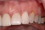 image of the same teeth after crowns and ortho | Wausau WI