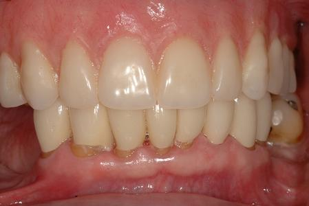 image of the same teeth after upper denture and lower crowns | Wausau WI