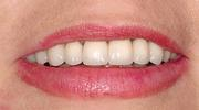 image of the same teeth after full upper arch reconstruction | Wausau WI