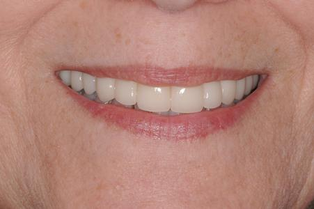 image of the same teeth after crowns | Wausau WI