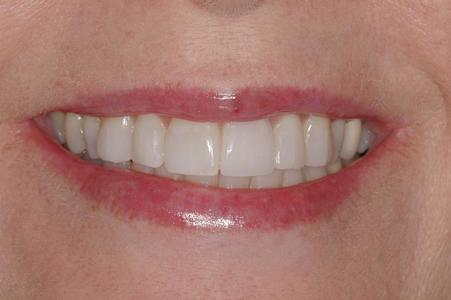 image of the same teeth after zoom professional whitening | Wausau WI