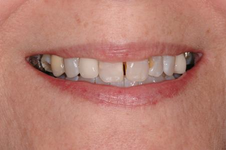 image of teeth with gaps and discoloration | Wausau WI