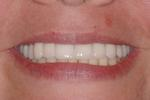 image of the same teeth after implants and crowns | Wausau WI