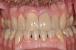 image of the same teeth after crowns and composite fillings | Wausau WI