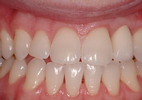 Single-Missing-Tooth-Implant-After-Image
