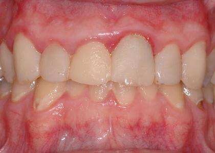 image of discolored & irritated gums | Wausau WI