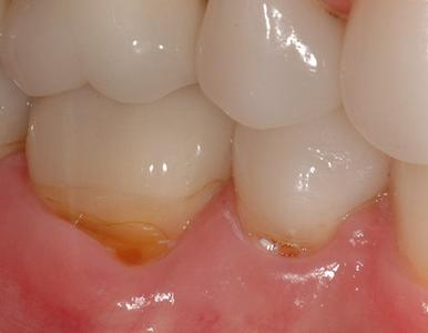 image of teeth with root exposure & gum recession | Wausau WI