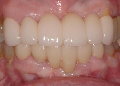 image of the same teeth after a porcelain bridge