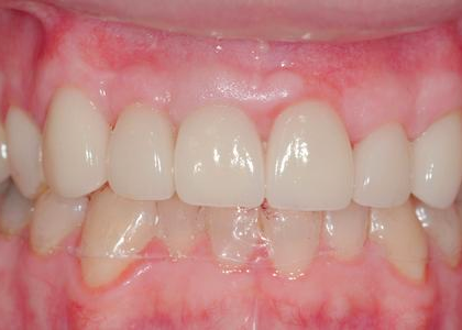 image of the same teeth after gum treatment and crowns | Wausau WI