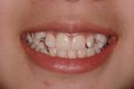 Orthodontics-Braces-Straight-Teeth-Before-Image